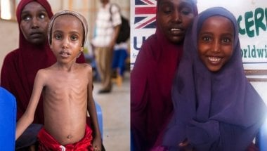 """Yasmiin before treatment and after The best kind of """"before and after."""" When Yasmiin arrived at our clinic, she was severely malnourished. After nine weeks of treatment, she was a happy, smiley kid again."""