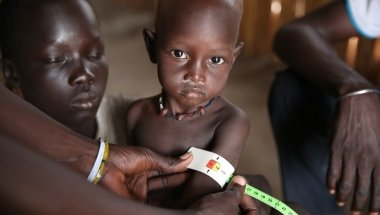 Two year old Bilan* being screened at a nutrition centre run by Concern Worldwide and Nile Hope in Unity State. Photo: Kieran McConville/Concern Worldwide. *name changed for security reasons.