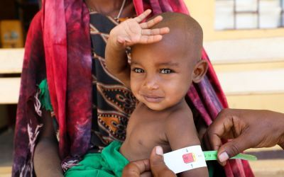 Halimo Hassan (1 year and 2 months) and mother Khayro Ali Hassan (30) in a remote health centre in Filtu, Somali Region. Halimo is being treated for severe acute malnutrition with the support of International NGO Concern Worldwide. Photo: Jennifer Nolan/ Concern Worldwide.