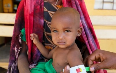 Halimo Hassan (1 year and 2 months) and mother Khayro Ali Hassan in a remote health centre in Filtu, Somali Region. Halimo is being treated for severe acute malnutrition with the support of International NGO Concern Worldwide. Photo: Jennifer Nolan/ Concern Worldwide