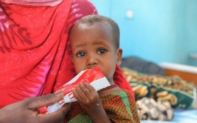 Baby Kali (18 months old) in Filtu Regional Hospital, Somali Region, Ethiopia. Kali is being treated for severe acute malnutrition with the support of International NGO Concern Worldwide. Photo: Jennifer Nolan/ Concern Worldwide
