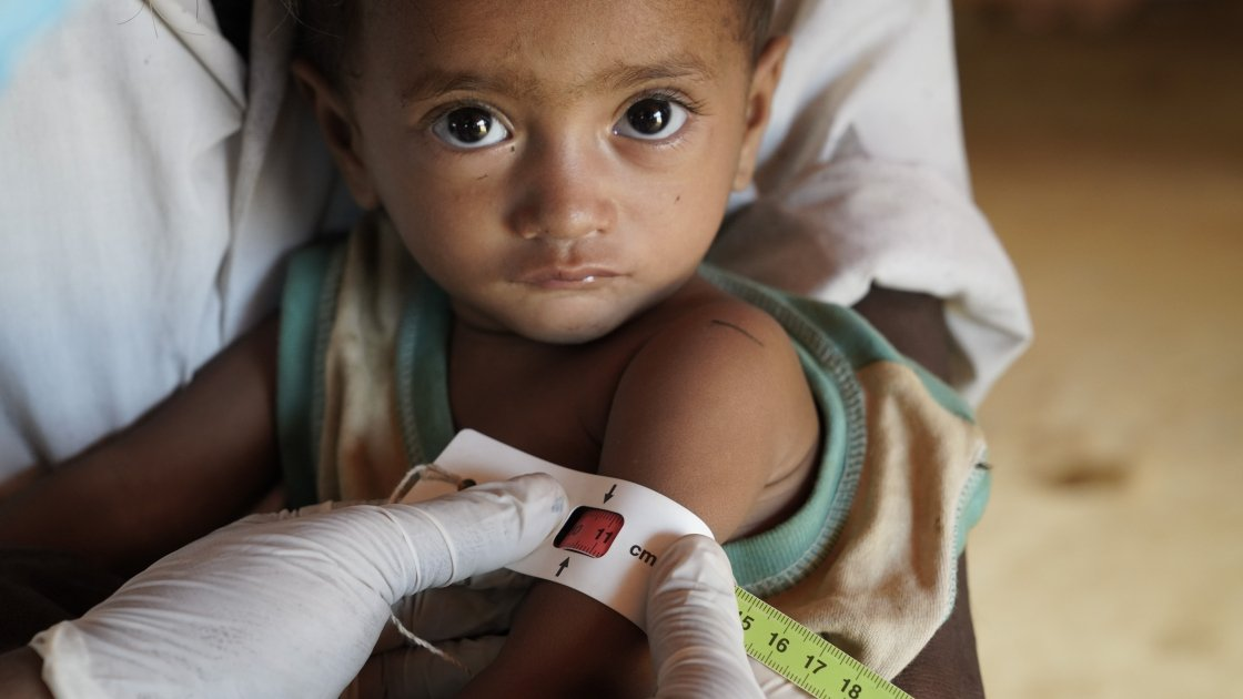 After having his upper arm circumference measured by Concern staff at a nutrition centre in Cox's Bazar, Bangladesh, little Rama is diagnosed as being severely malnourished. Photo: Abir Abdullah