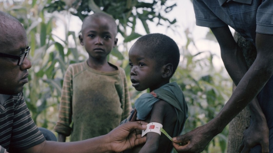 Edmond (3) is severely malnourished. He lives with his parents Jean-Marie Mbonimpa (30) and Jeannette Nzobamwita (26) and brother Pacifique (5) and 10-month-old sister Yves in a small banana-leaf-covered house in Marembo, Gisenyi, Kirundo.