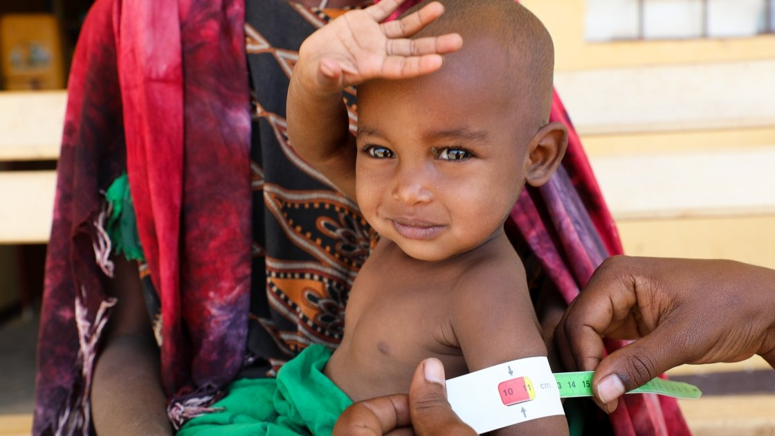 Halimo Hassan (1 year and 2 months) and mother Khayro Ali Hassan (30) in a remote health centre in Filtu, Somali Region. Halimo is being treated for severe acute malnutrition with the support of International NGO Concern Worldwide. Photo: Jennifer Nolan/