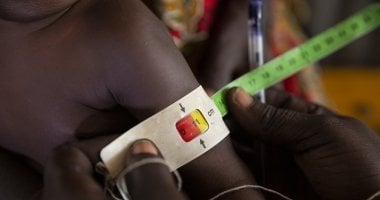 A child gets MUAC measurement assessed by a nutrition assistant at a Nutrition Centre in Gambella, Ethiopia.