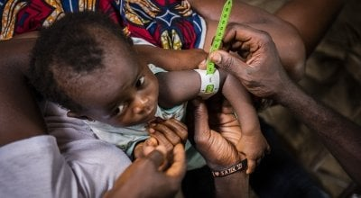 One-year-old Cecelia being tested for malnutrition.
